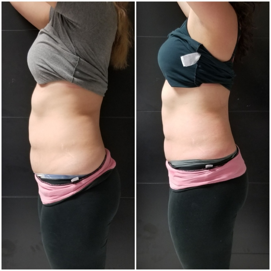 Laser Lipo before and after | Wonderful World of Bree